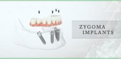 Zygoma Implants