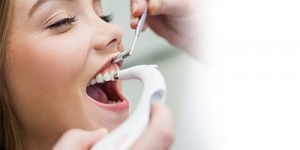 Dental Prophylaxis (Cleaning)
