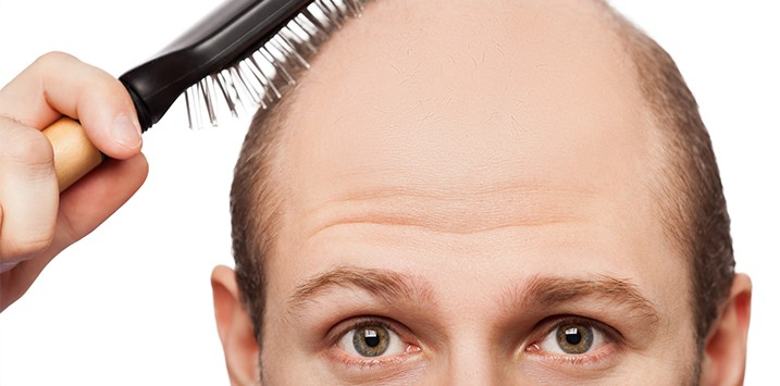 Hair Transplant and Restoration