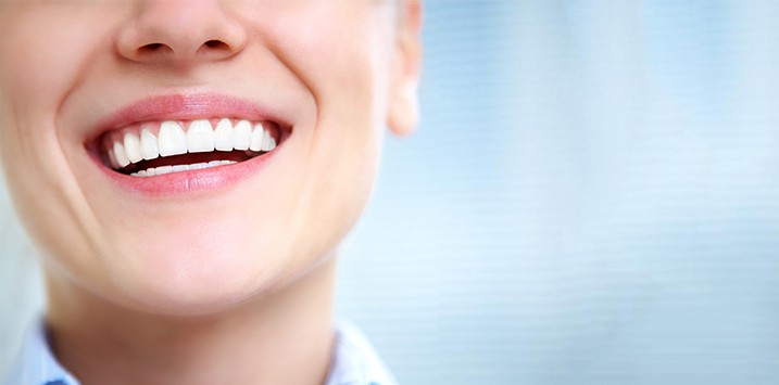 Porcelain Veneers - Are they worth it?