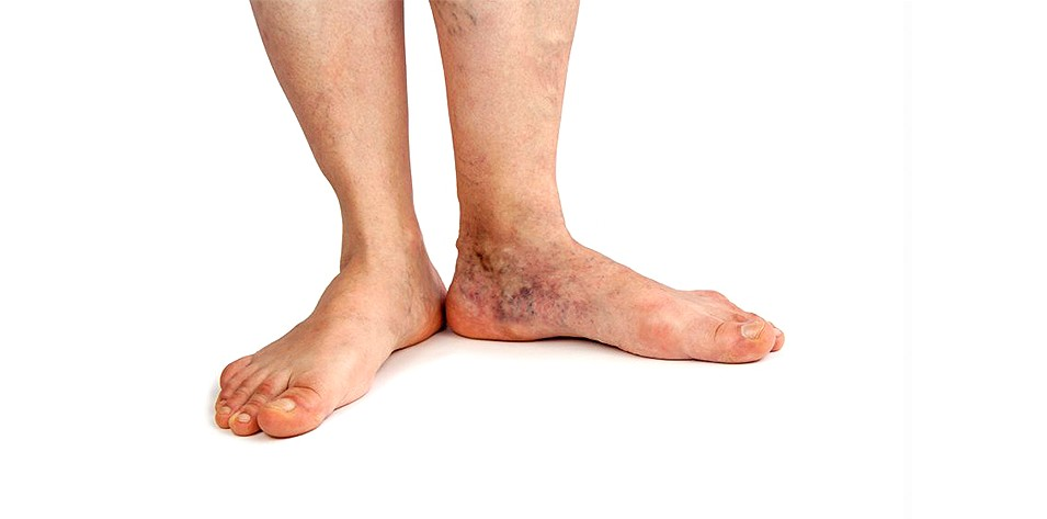 What Is Stasis Dermatitis?