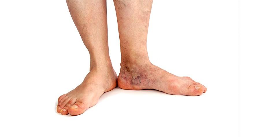 What Is Stasis Dermatitis?