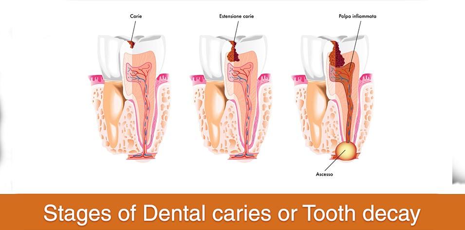 An Insight into Tooth Decay