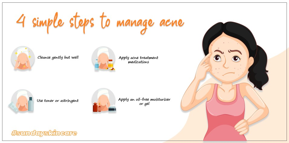 4 Simple Steps to Manage Acne