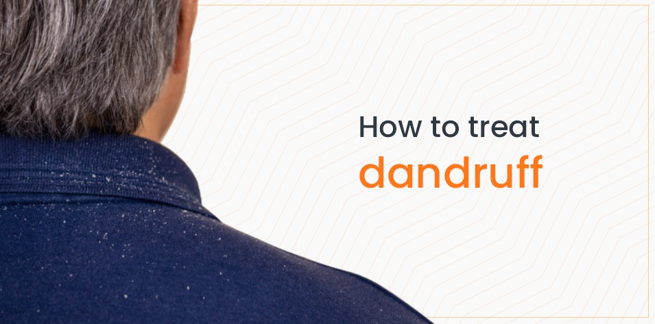 How to treat Dandruff