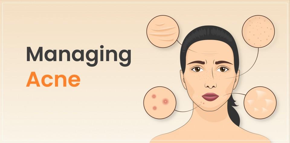 Managing Acne