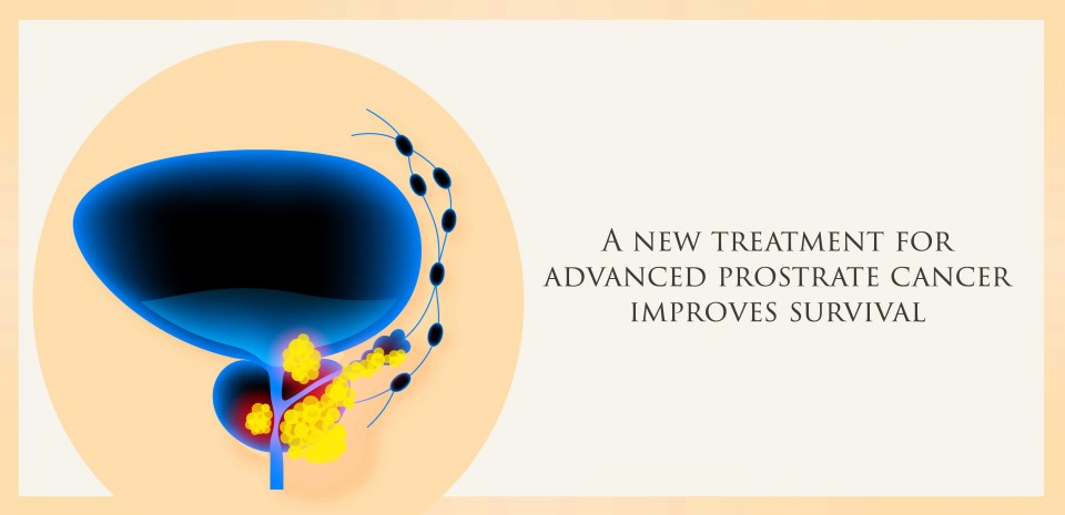 A new treatment for advanced prostrate cancer improves survival