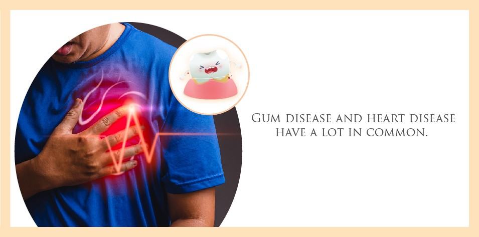 Gum disease and heart disease have a lot in common