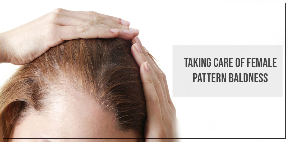Taking care of Female Pattern Baldness
