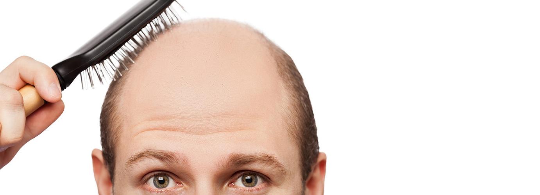 Advance Book PRP for Hair Loss Treatment @SafeCare Clinics